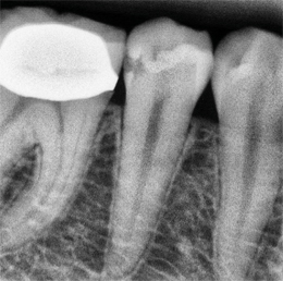 XDR Caries Enhanced