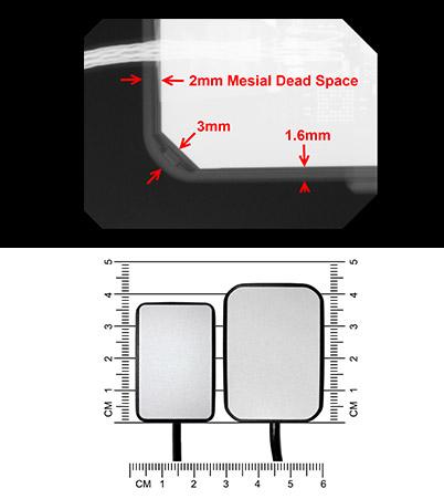 Intraoral Sensor Comfort