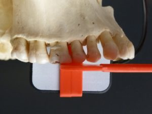 Figure 1 - Capture of Canine-Premolar Contact