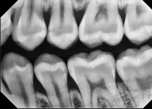 Figure 1b - Class II Lesion, with Caries/Endo Filter